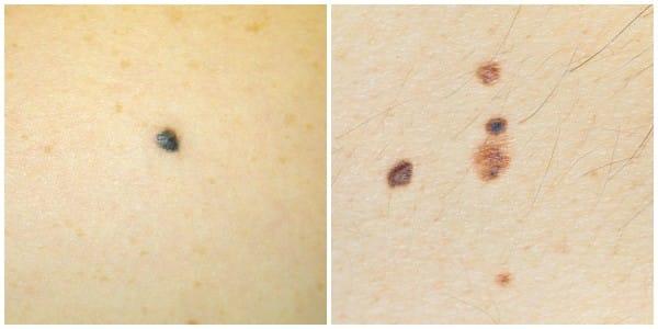 Byłam pewna, że to zwykły pieprzyk, dopóki nie zapoznałam się z tym. Teraz sprawdzam całą powierzchnię skóry!