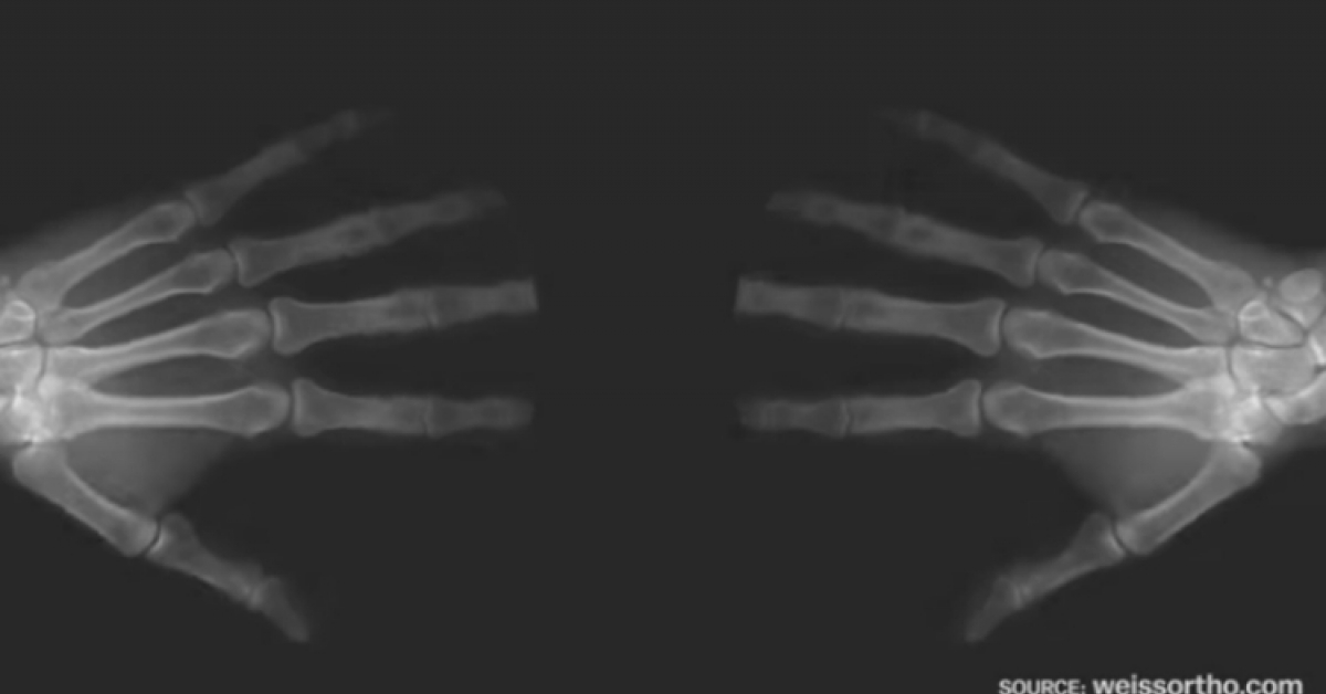 Oto, co naprawdę dzieje się w Twoim ciele, kiedy strzelasz palcami u rąk. Musisz to zobaczyć!