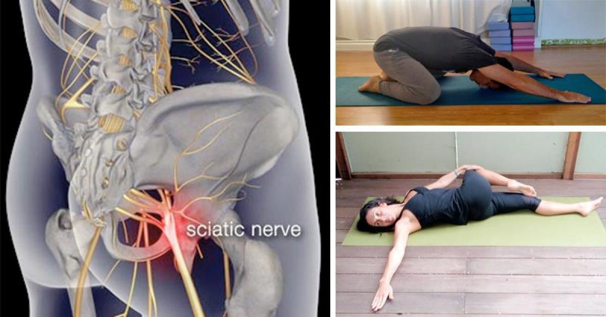 Możesz walczyć z bólem rwy kulszowej, a wystarczy 8 prostych ćwiczeń, by się go pozbyć