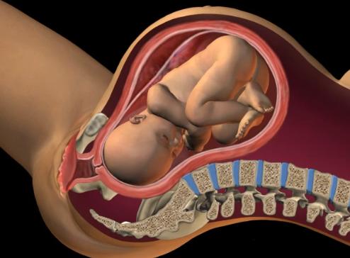 Oto najczęstszy uraz, jaki przydarza się noworodkom podczas porodu. Wygląda przerażająco…