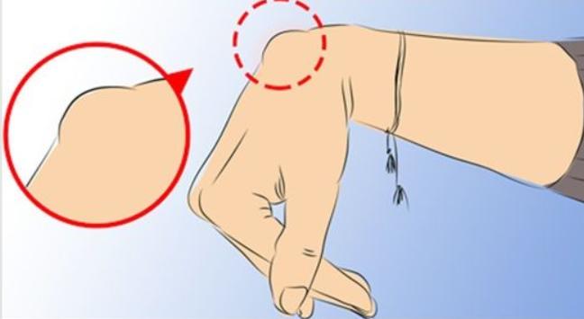 Obecność tego guzka na nadgarstku powinna być powodem do niepokoju. Nie bagatelizuj tego objawu
