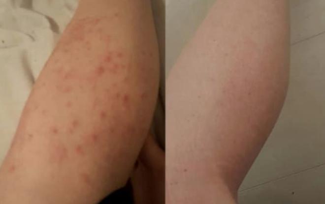 Znasz te małe, czerwone krostki pojawiające się po goleniu? Powód ich powstania jest obrzydliwy