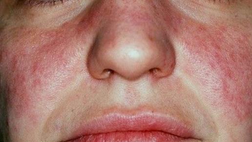 Małe zmiany na Twojej twarzy, które są ostrzeżeniem o poważnych problemach zdrowotnych