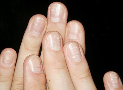 białe plamki na paznokciach