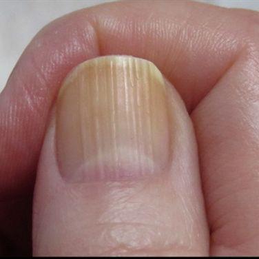 pionowe bruzdy na paznokciach