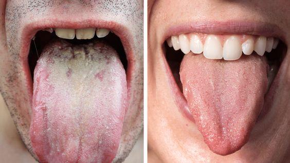 Biały nalot na języku – co oznacza i jak się pozbyć?