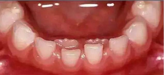 Coraz więcej dzieci ma podwójne zęby! To wina rodziców, którzy uczą złych nawyków żywieniowych