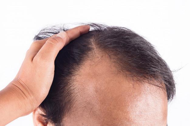 Pozbądź się łupieżu stosując naturalny szampon. Jego skuteczność potwierdzają dermatolodzy