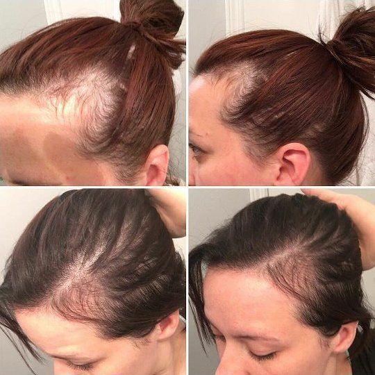 Wieczorne nawyki, które uratują Twoje włosy. Już nigdy nie będziesz narzekać na ich wypadanie