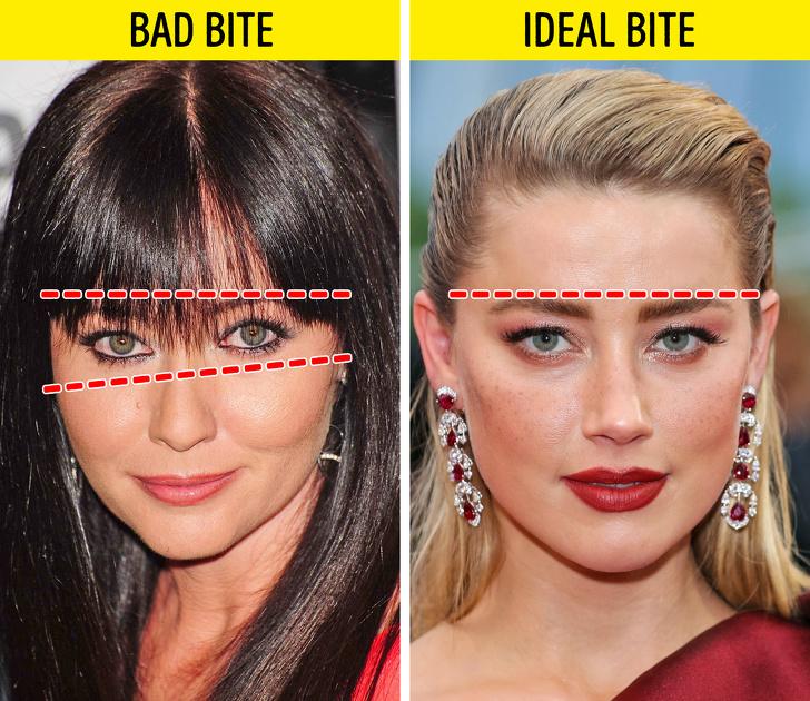 Zły zgryz wpływa bardzo niekorzystnie na nasz wygląd i zdrowie. Przedwczesne starzenie to początek