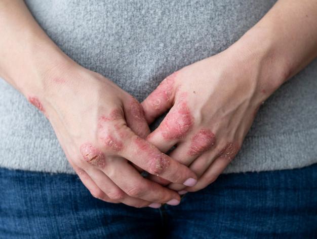 8 pokarmów, których nie powinieneś jeść, jeżeli cierpisz na zaburzenia autoimmunologiczne