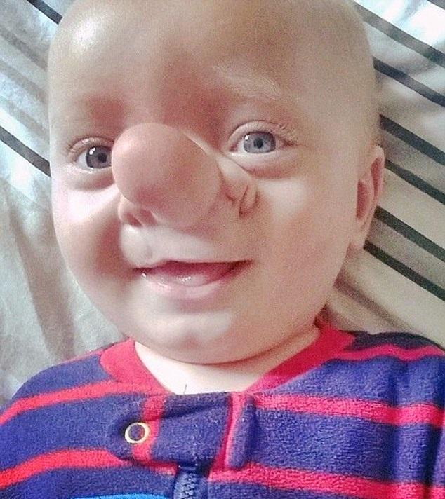 Mózg wrastał do nosa dziecka