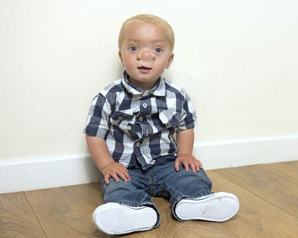 Mózg wrastał do nosa dziecka. Niektórzy mówili, że jest brzydki, że nie powinien się urodzić