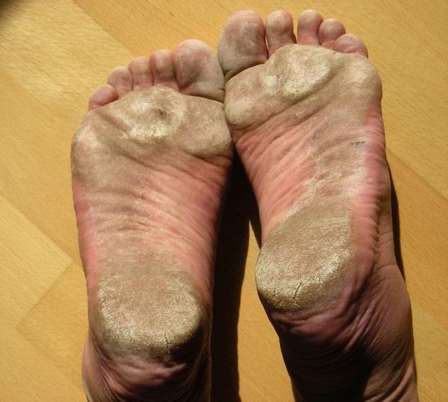 6 przyczyn suchych i popękanych pięt. Podpowiadamy, jak możesz sobie z nimi poradzić