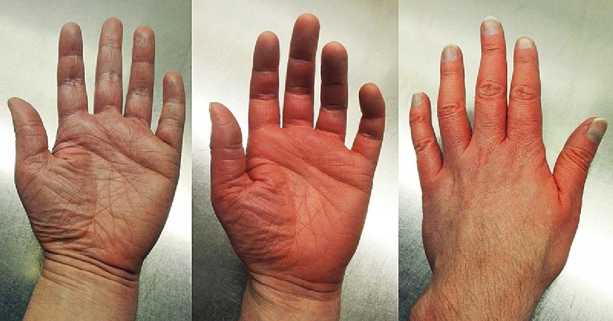 jak powstrzymać starzenie się dłoni