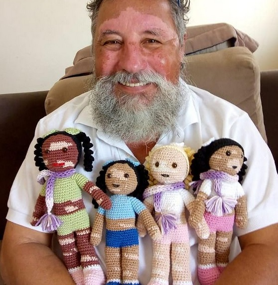 lalki dla dzieci z bielactwem