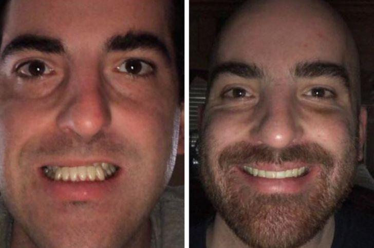 16 osób, które zdecydowały się na operacje plastyczne i dziś wyglądają zupełnie inaczej