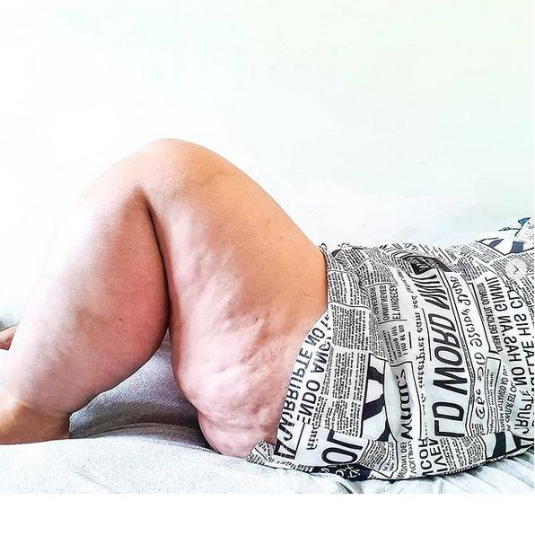 Nogi 29-latki są gigantyczne. Rzadka choroba zmieniła życie dziewczyny w koszmar