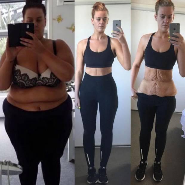 W 11 miesięcy schudła 85 kg. Wiele osób jej nie wierzyło. Wtedy opublikowała kolejne zdjęcie